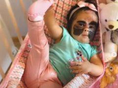 Родители уверены, что их дочка с родимым пятном похожа на супергероиню