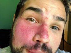 Мужчина научился счастливо жить с большим родимым пятном на лице