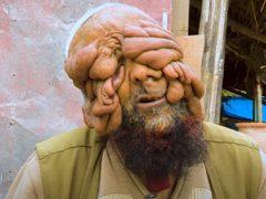 Мужчина, которого прозвали «человеком без лица», нашёл любовь и стал отцом двоих детей
