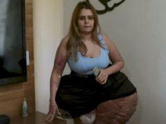 Женщина надеется собрать деньги, чтобы уменьшить гигантскую опухоль на ноге